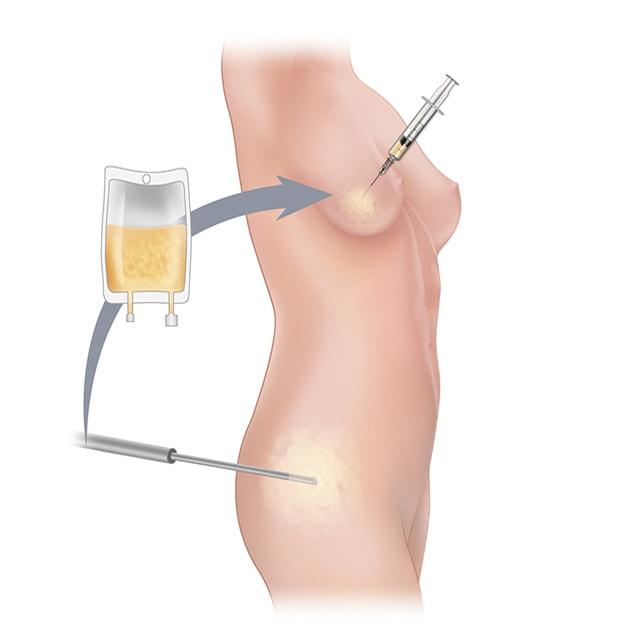 عمل تزریق چربی توسط دکتر ثنایی