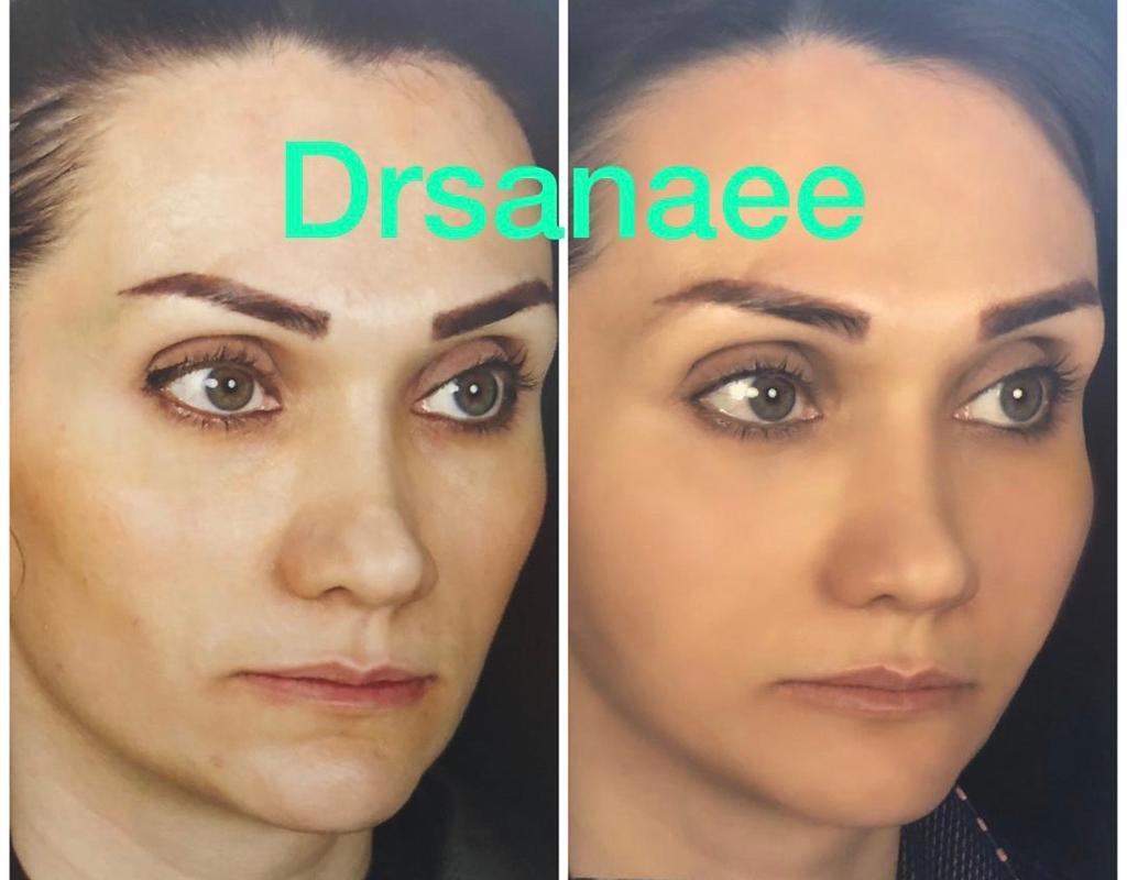 افزایش حجم صورت با تزریق چربی