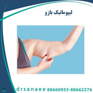 لیپوماتیک بازو