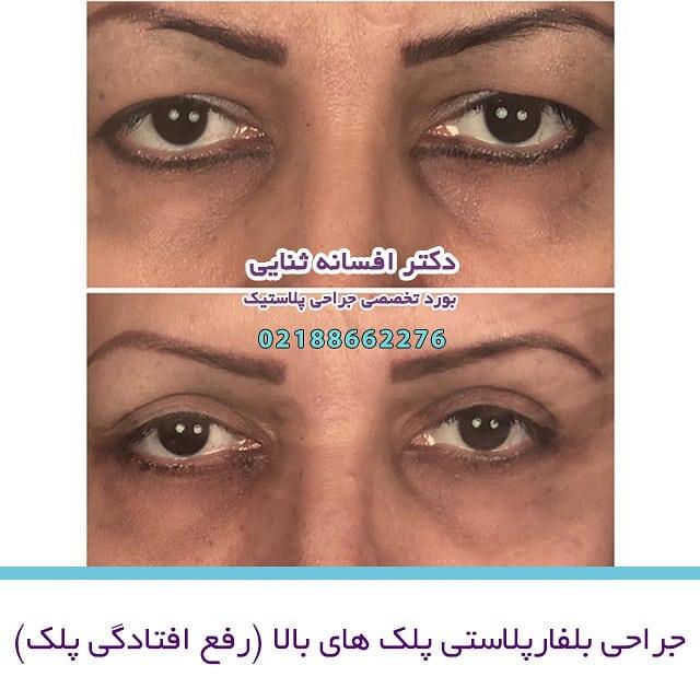 جراحی بلفارپلاستی پلکهای بالا -قبل ویک ماه بعد عمل