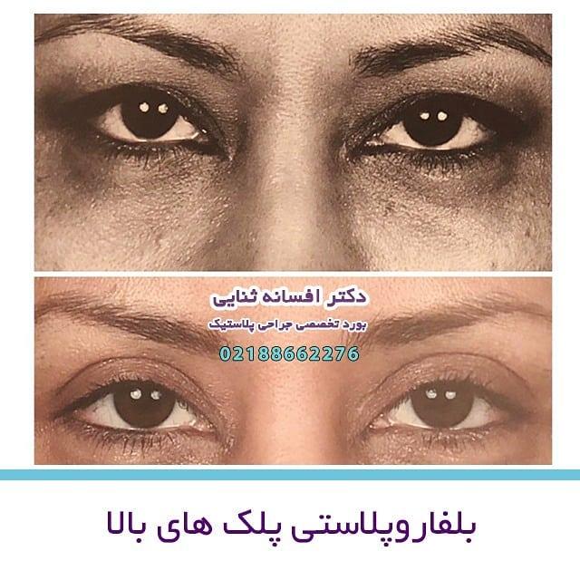 نمونه جراحی بلفاروپلاستی دکتر افسانه ثنایی
