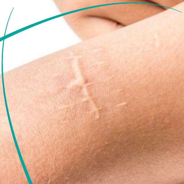 عکس درمان اسکار