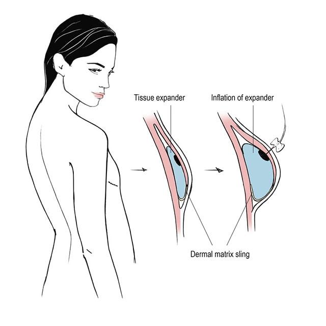 جراحی پروتز سینه در افراد مبتلا به فیبروکیستیک