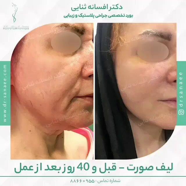 عمل لیفتینگ و کشیدن پوست صورت و گردن چگونه انجام می شود؟